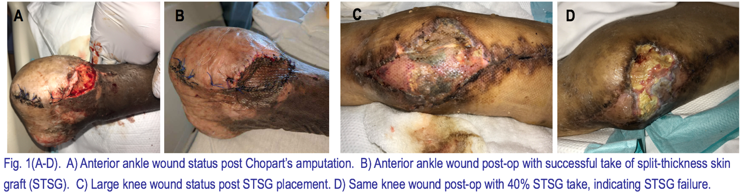 Major Risk Factors Contributing To Split Thickness Skin Graft Failure Published In Georgetown Medical Review